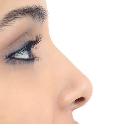 nose procedure