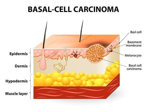 skin surgery for basal cell carcinoma