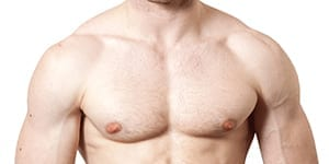 chest condition called gynaecomastia
