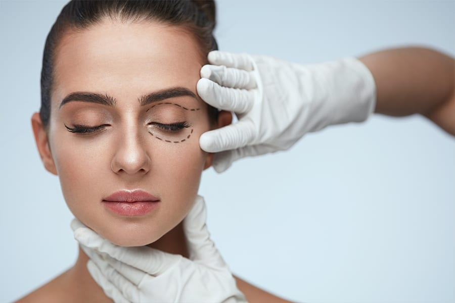 eyelid surgery: blepharoplasty