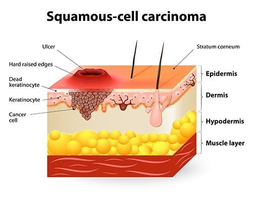 skin surgery for squamous cell