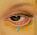 Transconjunctival Incision for Lower Eyelid