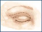 Upper Eyelid Incision Line